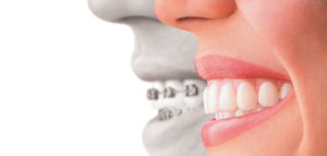 invisalign treatment arlington heights