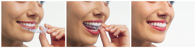 invisalign arlington heights
